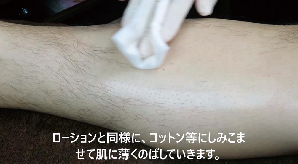STEP5:脱毛箇所の整肌